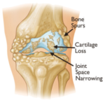 osteo-pic-joint-level3
